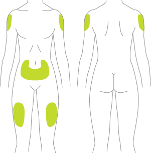 Areas on the body where Tresiba® can be injected
